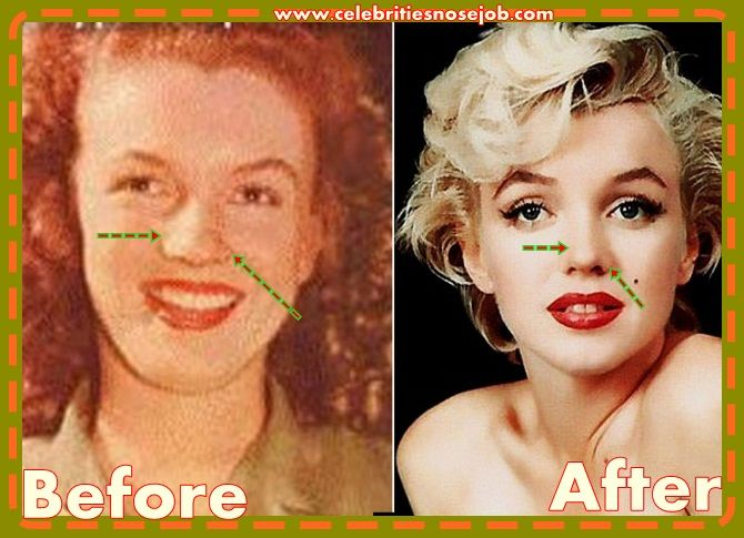 Marilyn Monroe Cosmetic Surgery Nose Job Before And After