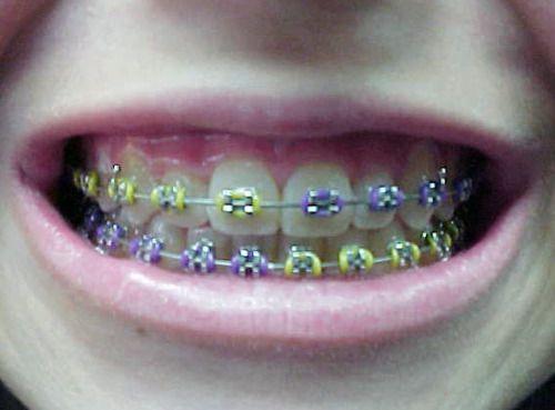 cute braces