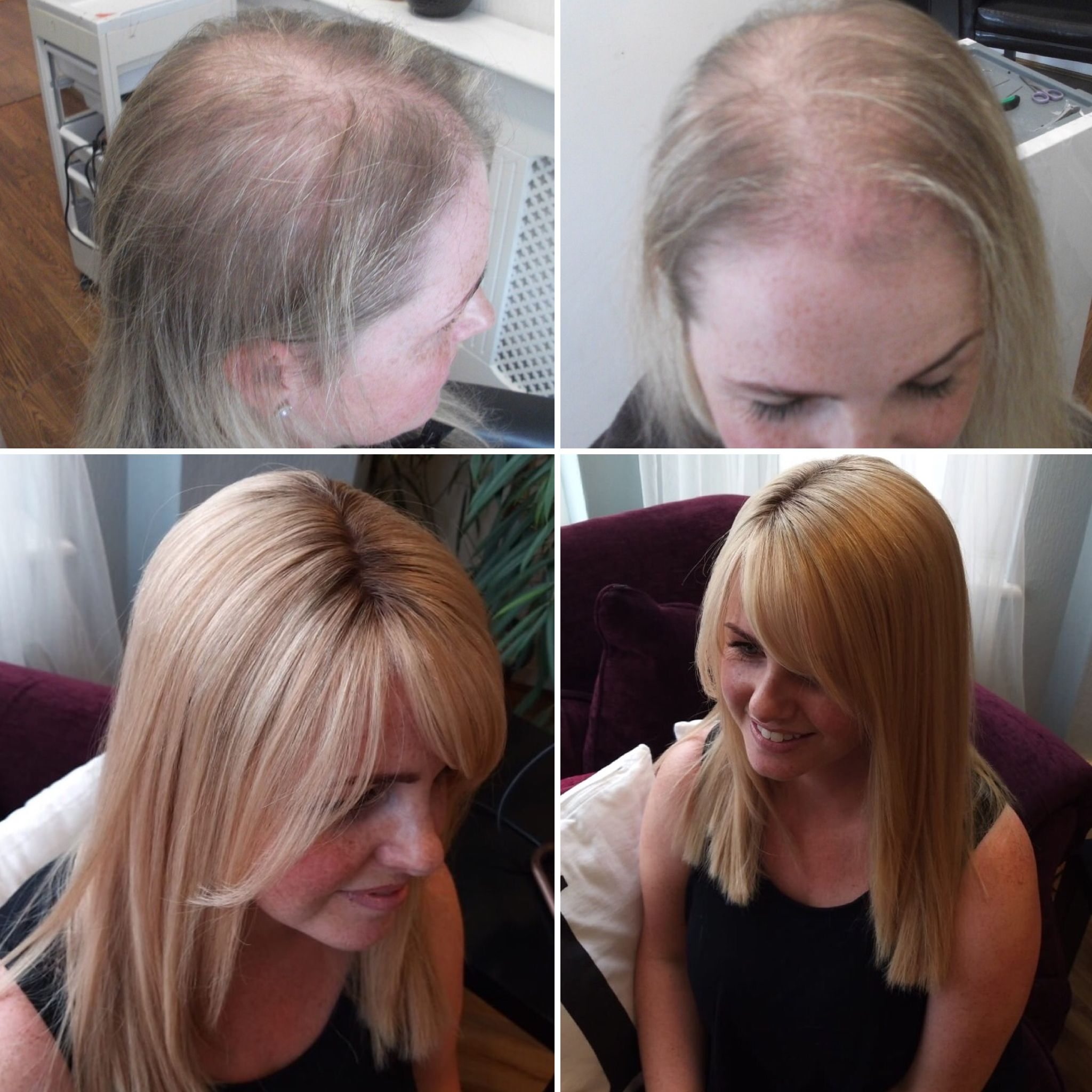 Solution to all types of female hair loss and thinning ...