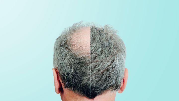 Glatze Haare Wachsen Wieder