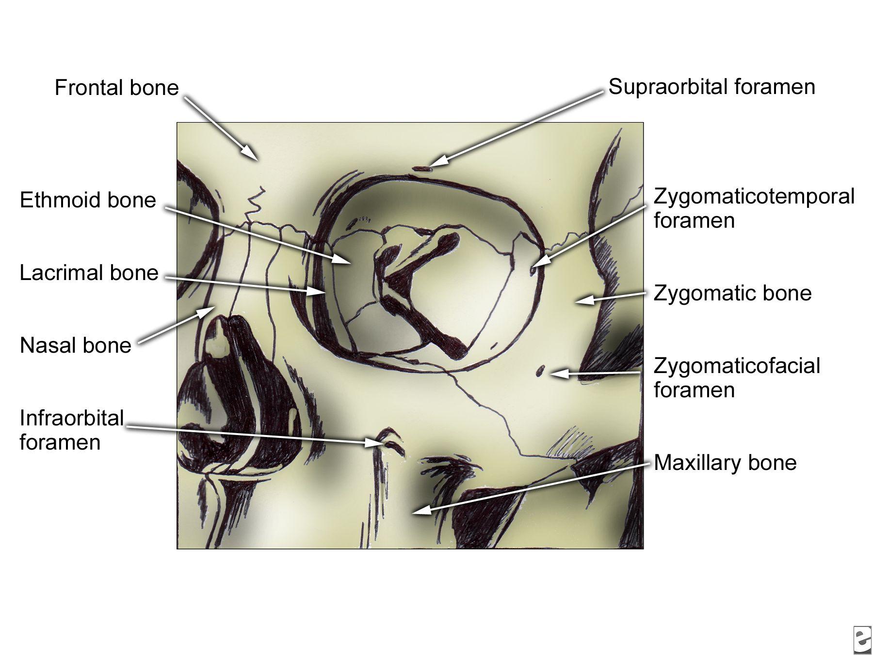 Zygoma, frontal view.   Anatomy   Pinterest   Anatomy