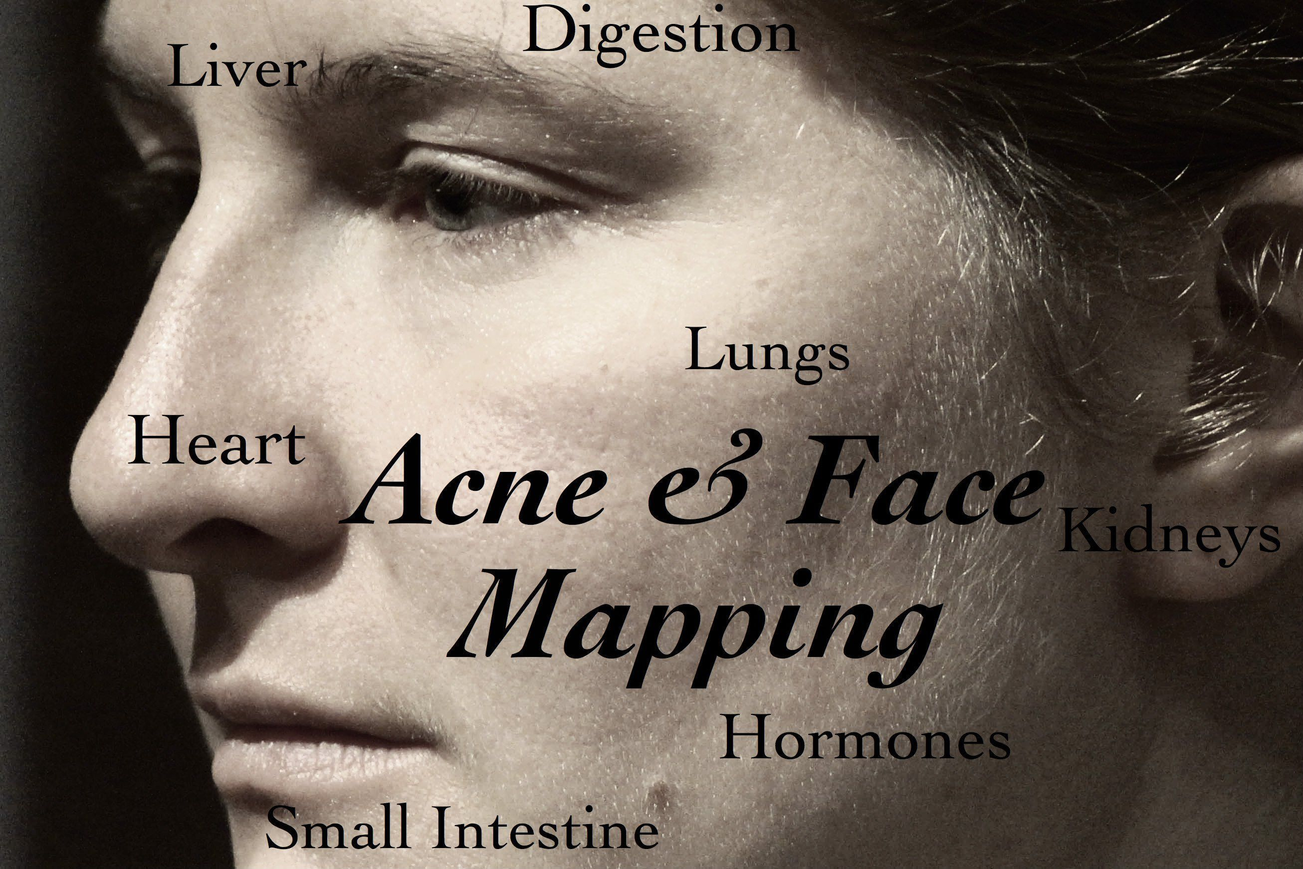 Is Acne Troubling You? Try These Helpful Tips! Face