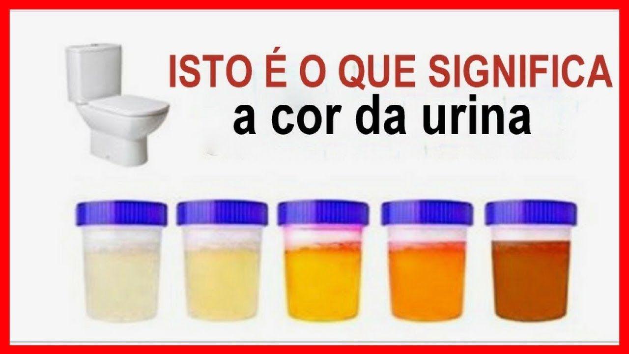 cancer in urina)