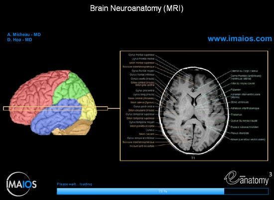 Anatomy Of The Brain Loading Page Anatomy Brain Mri Study