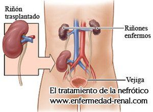http://www.enfermedad-renal.com