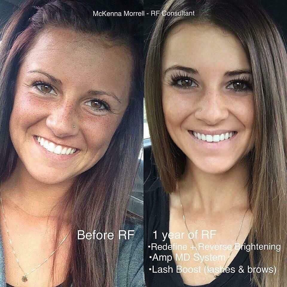 Skincare For Beautiful And Clear Skin Get Rid Of Dark Marks And Fix Uneven Skin Tone With Reverse The Rodan And Fields Consultant Rodan And Fields Skin Care