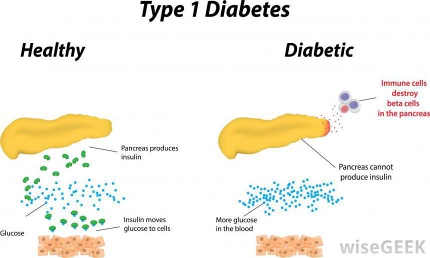 Type 1 Diabetes Diagram Health Pinterest Diabetes Beta Cell