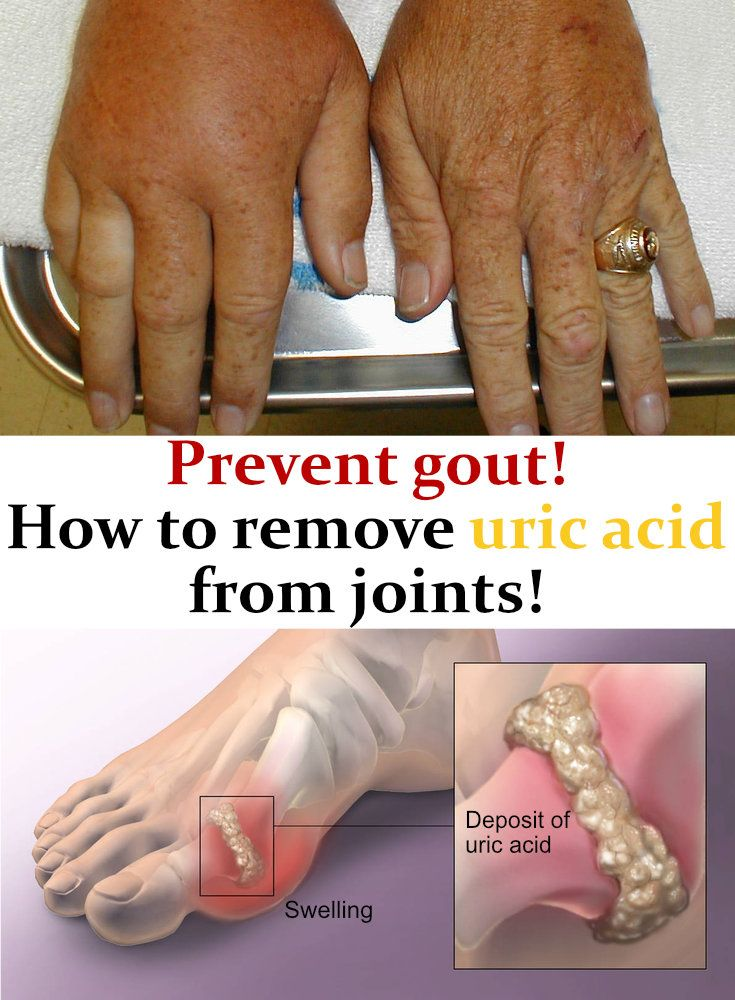 quick natural relief for gout food for uric acid in hindi for increased uric acid vegetables