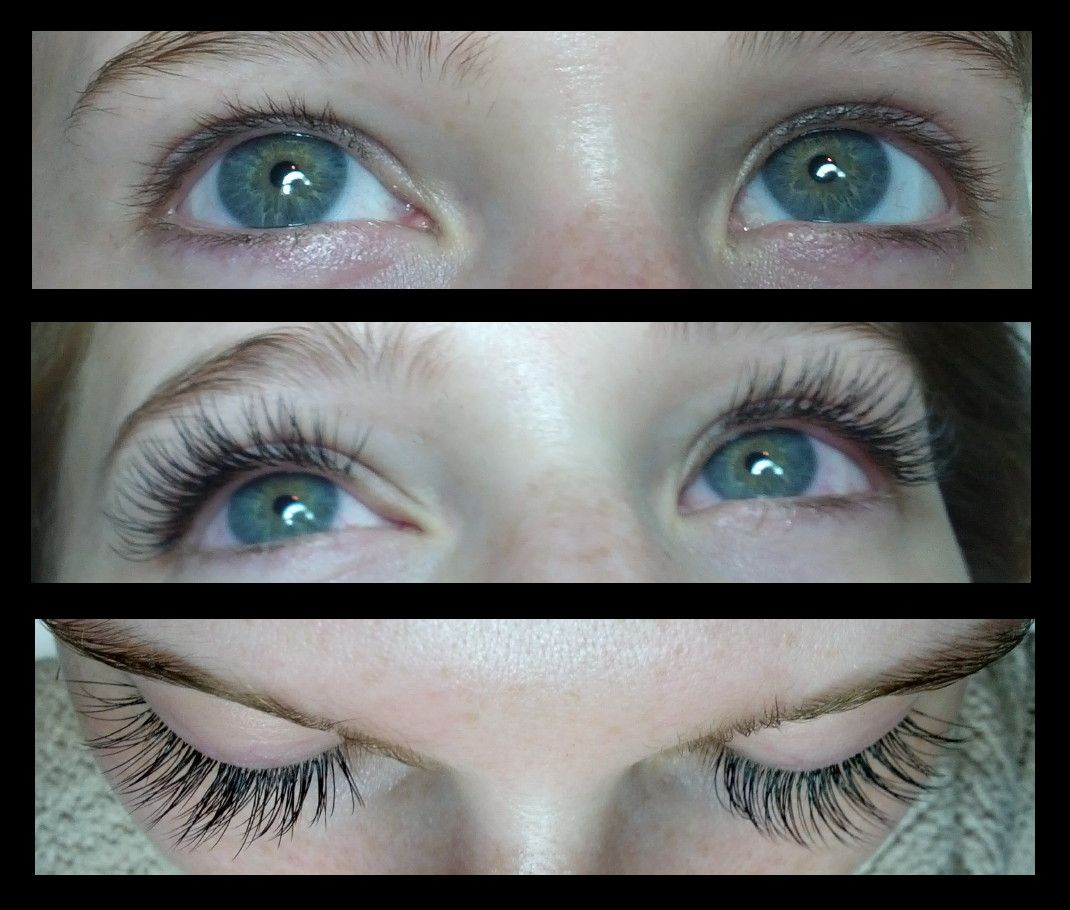 Emily before & after Xtreme Lashes by Sylvia Flutter