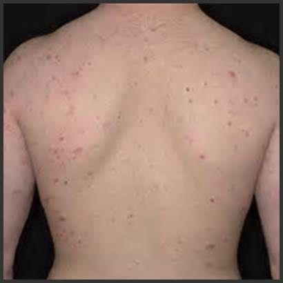 Mild Nummular Eczema Eczema Free Forever 180317