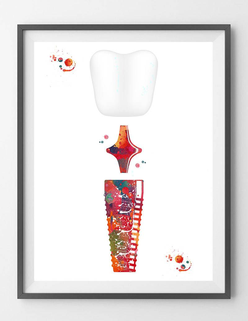 Dental Implant watercolor print dental surgery anatomy art poster ...