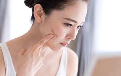 17+ Bagaimana cara menghilangkan bekas luka di wajah inspirations