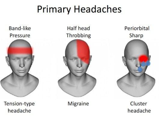 Pin by Di Va on health hog | Headache chart, Headache ...