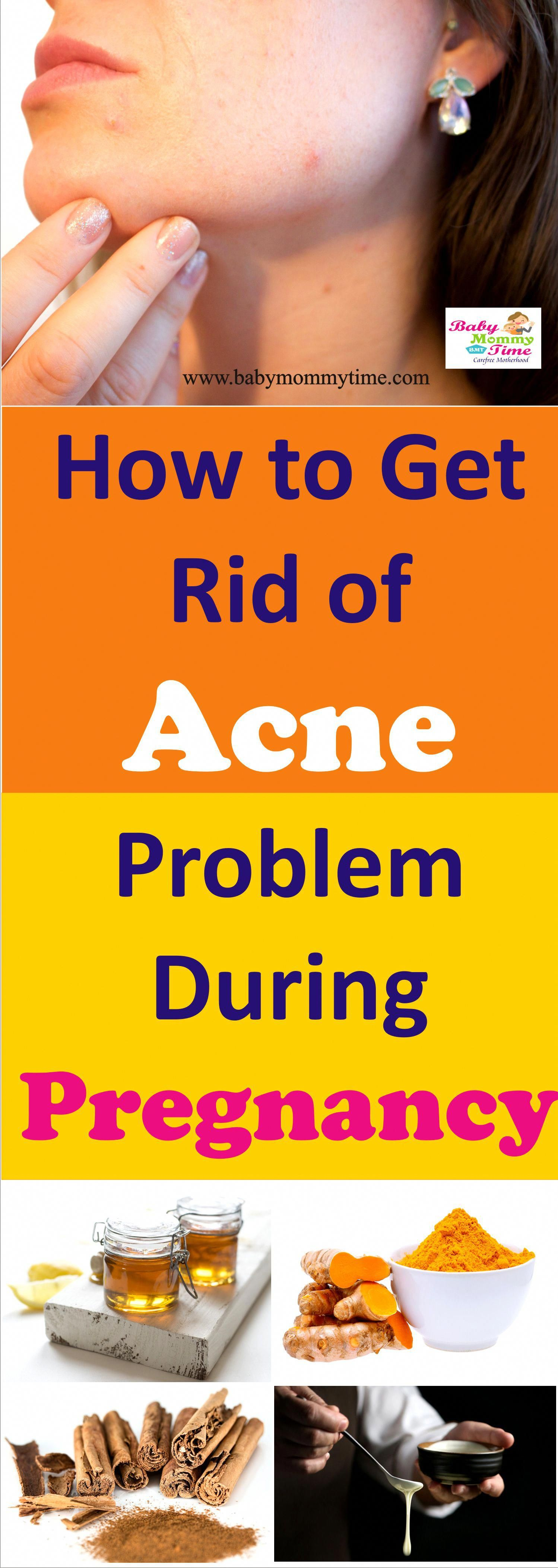 Pin On Skin Care Acne Home Remedies