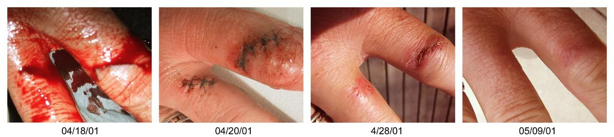 Hand cut through stages of healing, with stitches  | Injuries