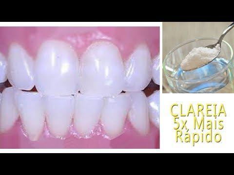 Como Clarear Os Dentes Na Hora Eliminar Tartaro E Gengivite Dicas
