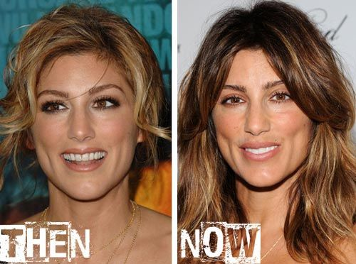 Plastic Surgery Chin Dimple | Plastic Surgery Celebrities