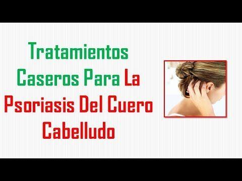 diabetes tipo 2 psoriasis en el cuero cabelludo