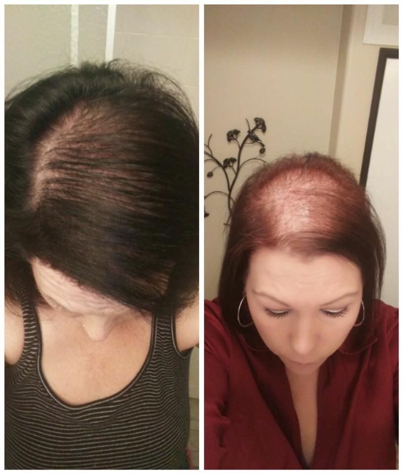 Thyroid Hair Loss Is Common You Have A Non Toxic Solution With Monat S Naturally Based Hair Product Our Pro Hair Loss Causes Thyroid Hair Loss Help Hair Loss