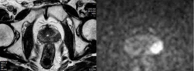 ¿Puede una resonancia magnética perder cáncer de próstata