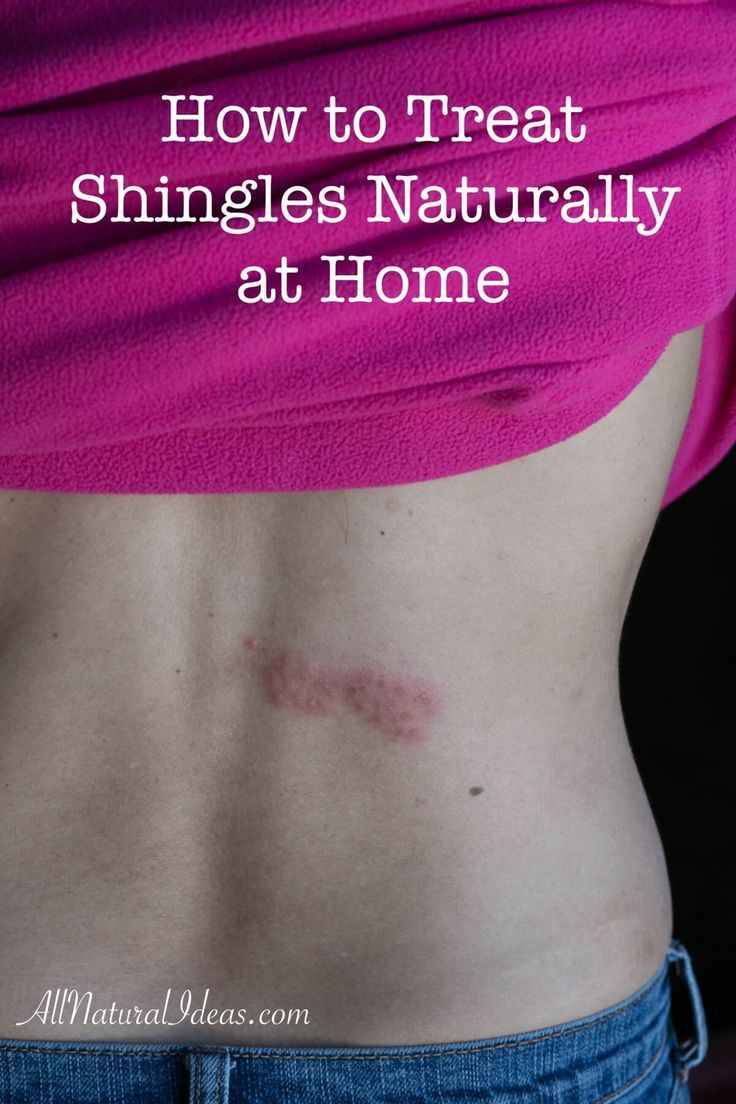 Pin On Natural Home Remedies