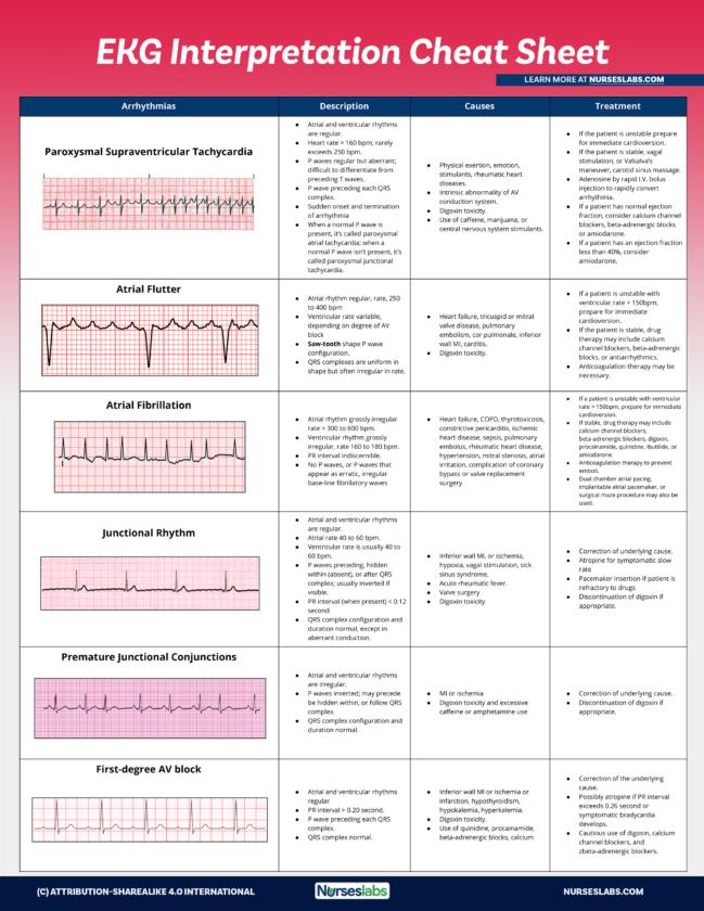 16+ EKG Interpretation Cheat Sheet Free Download