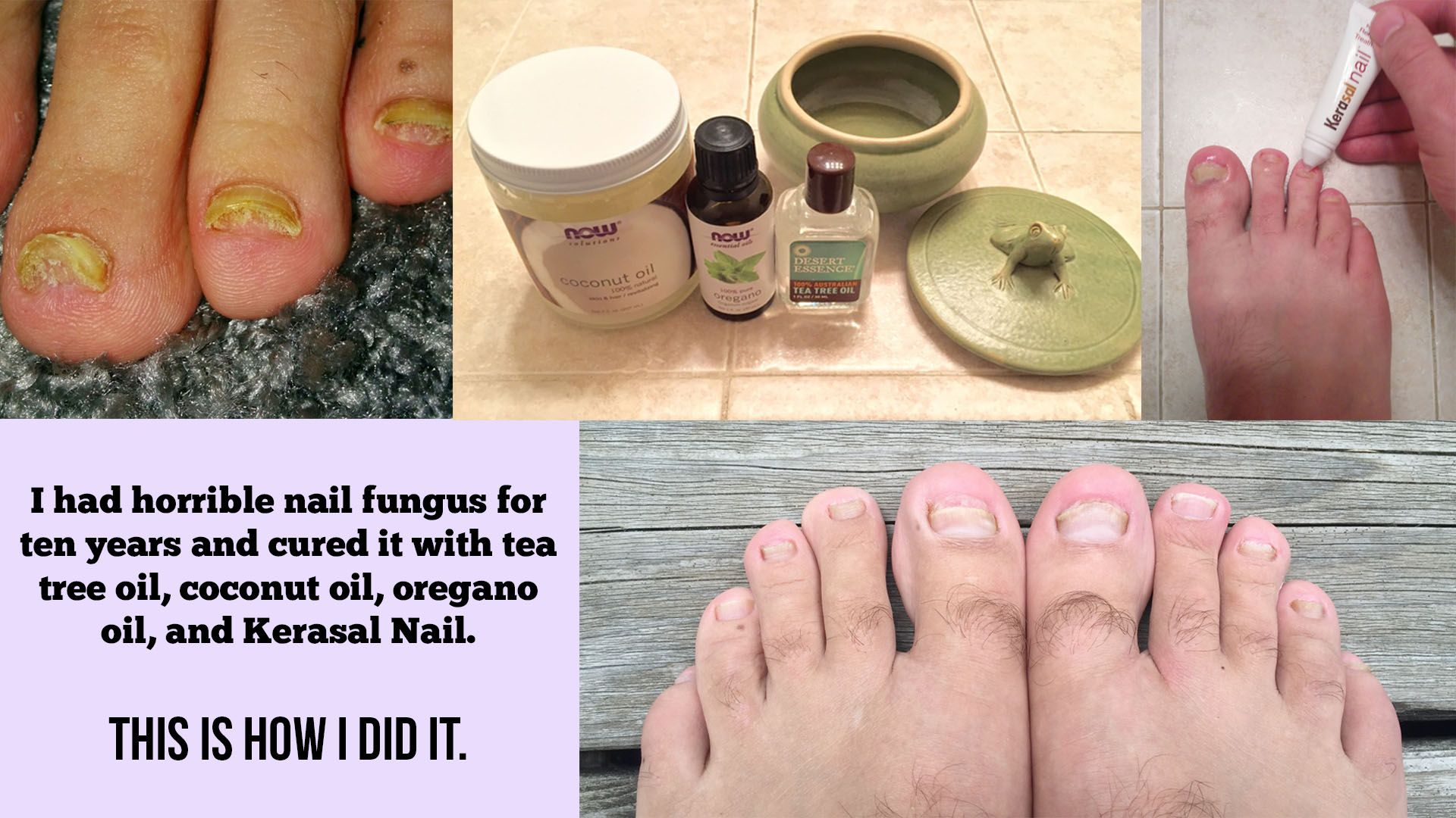 I had horrible nail fungus for ten years and cured it with tea tree ...