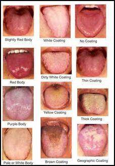 Diagnosis (Tongue) | Health | Tongue health, Chinese