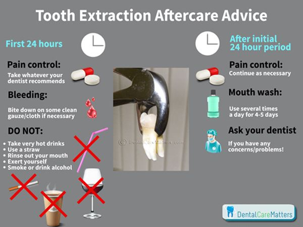 Tooth Extraction Aftercare Advice Teefies Pinterest Tooth