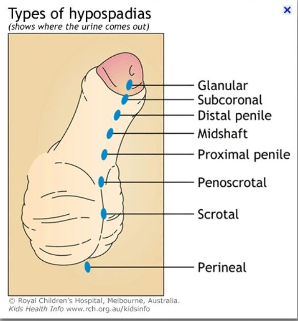 Hypospadias Is A Birth Defect Affecting 1 In 100 Baby Boys