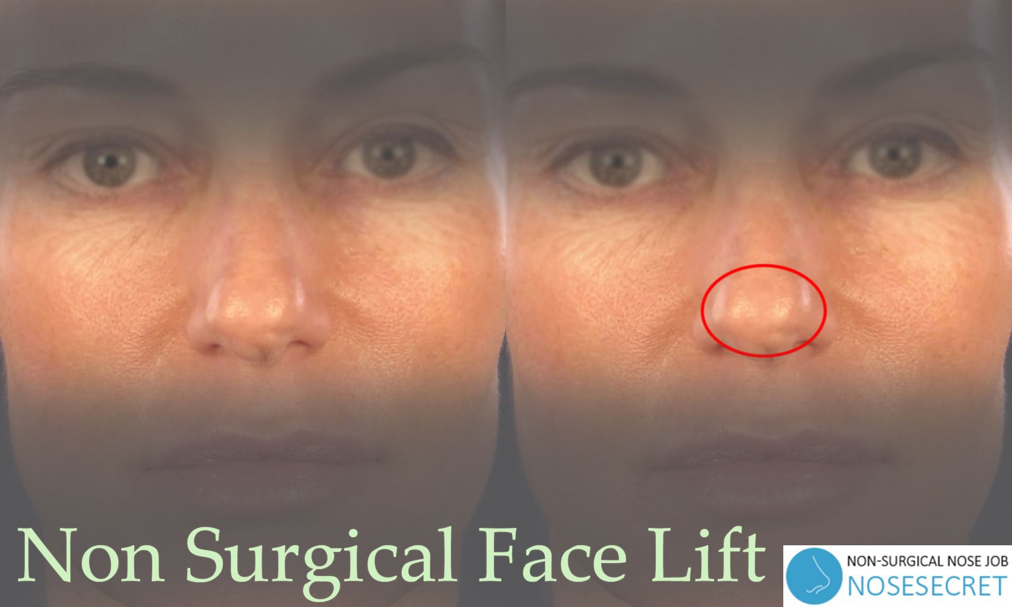 Non Surgical Nose Job For Wide Nose NoseSecret is the