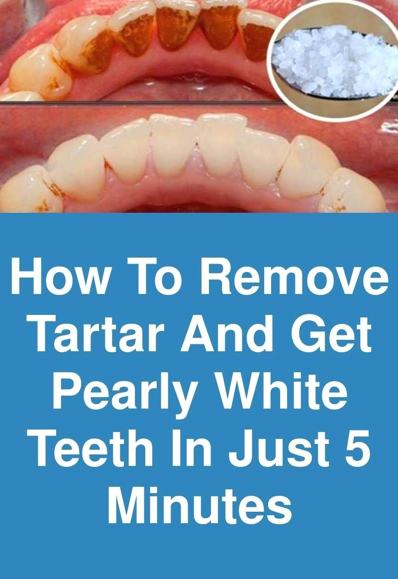 Be Your Own Dentist! See How To Remove The Plaque From