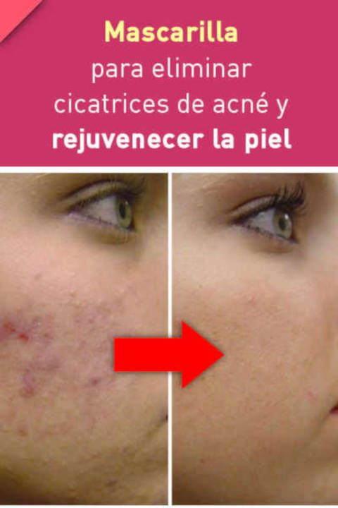 Mascarilla Para Eliminar Cicatrices De Acné Acne Home Remedies For Acne Anti Wrinkle Face Cream