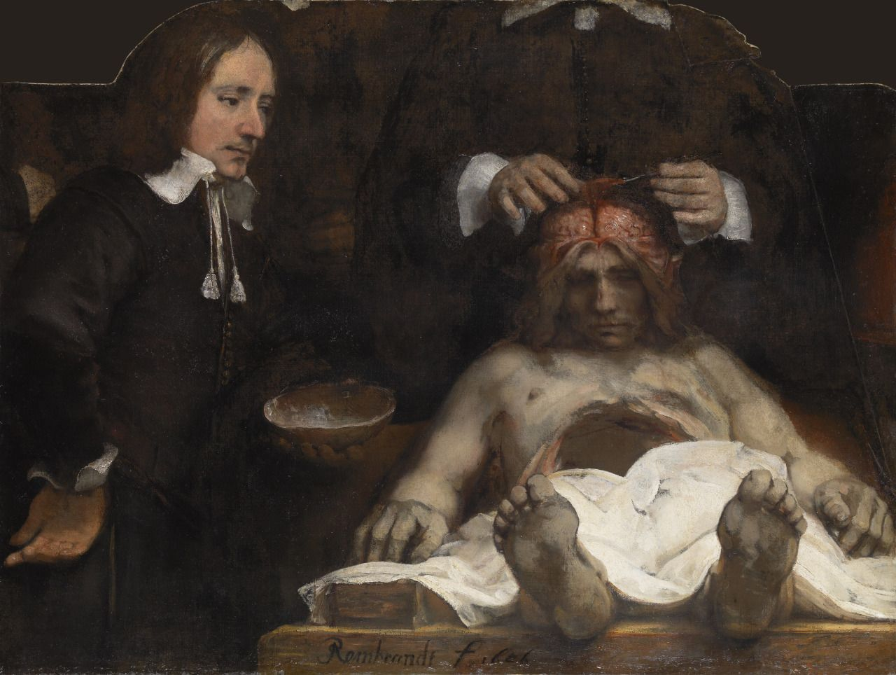 """Rembrandt """"Anatomy Lesson of Dr. Jan Deijman"""", 1656. 