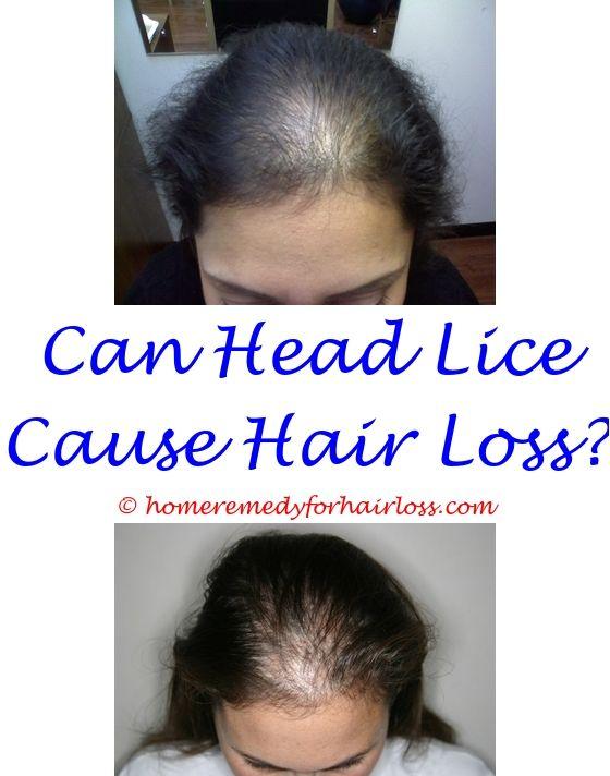 Hair Grafting | Male hair loss, Hair loss and Alopecia hair loss
