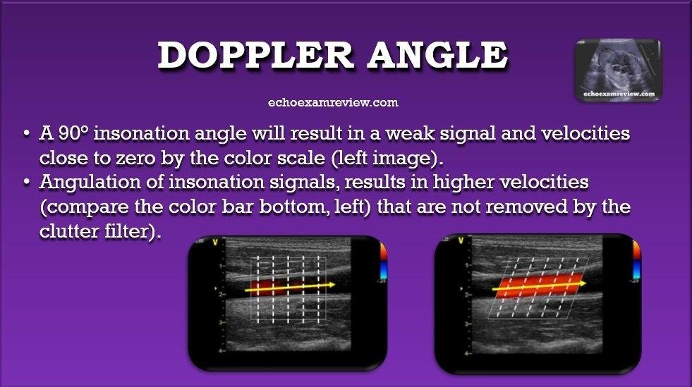 Doppler Angle Ultrasound Diagnostic Medical Sonography Ultrasound Physics