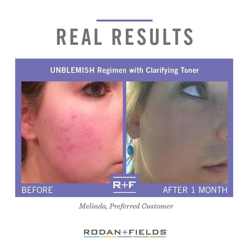 Review Rodan Fields Unblemish Regimen Rodan And Fields Life Changing Skincare Unblemish