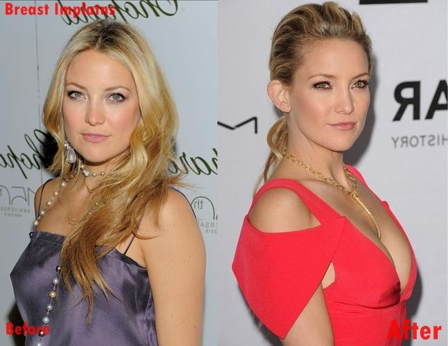 Something is. Kate hudson breast augmentation