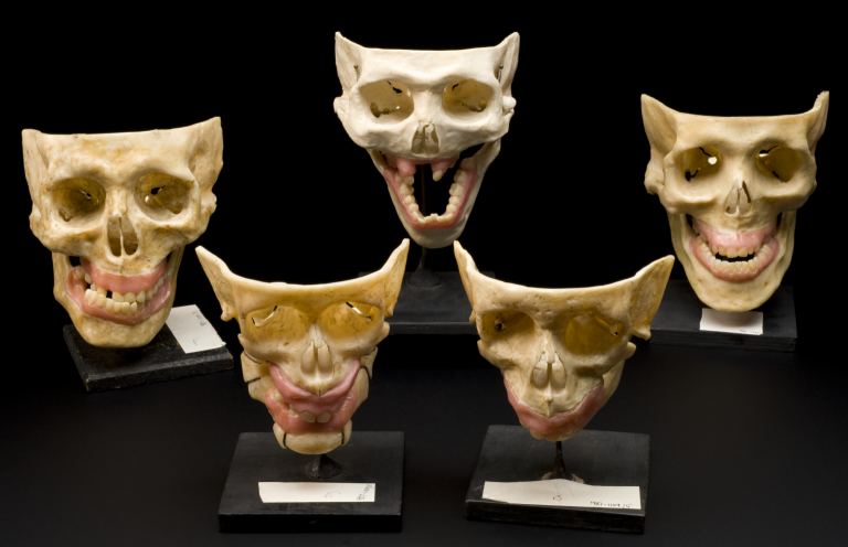 malformalady:  Model of adult skull, illustrating deformities, England, 1962. Back row - left to right: Model of front part of adult skull, illustrating gross overdevelopment of mandible, cleft palate, hare lip  and lack of maxillary development, showing effect on dentition, Model of front part of  adult skull illustrating overdevleopment of one side of mandible  resulting in cross bite, Model of front part of adult skull,  illustrating overdevelopment of mandible. Front row: Two models of…