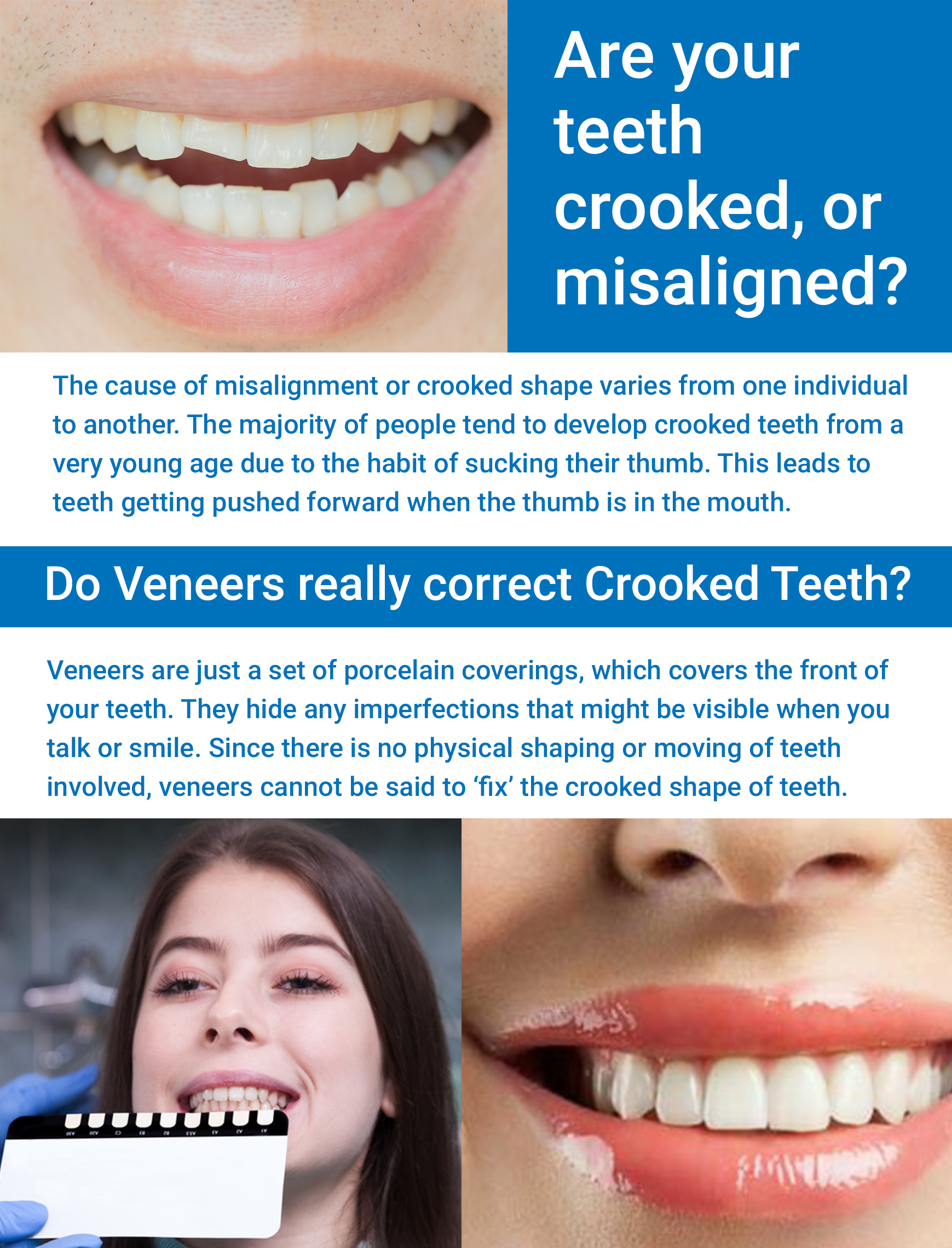 Watch How Crooked Teeth Can Impact Your Dental and Overall Health video