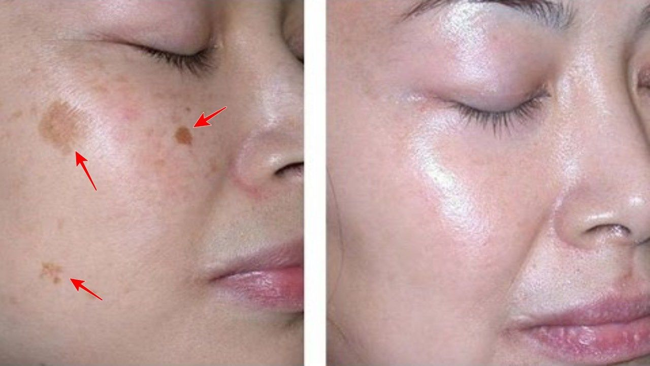 Remove Those Annoying Dark Patches On The Neck Underarms And