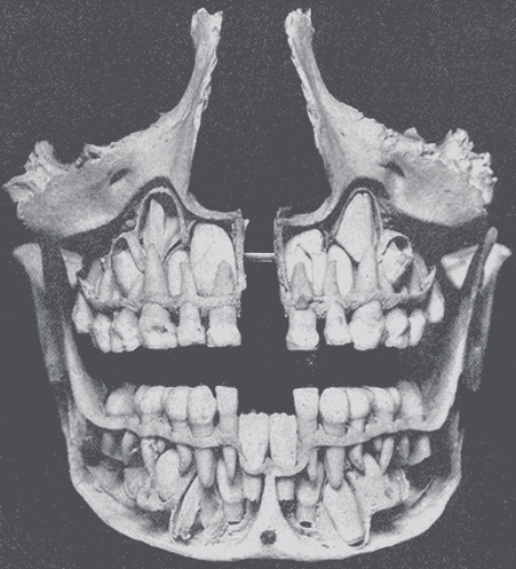 X Rays Of Kid S Skulls As Their Baby Teeth Get Pushed Out