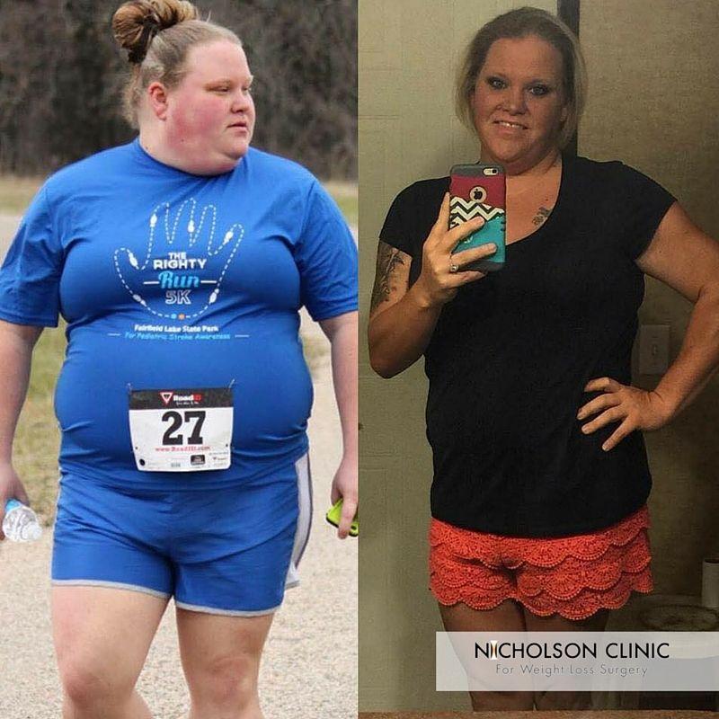 lap band weight loss surgery texas
