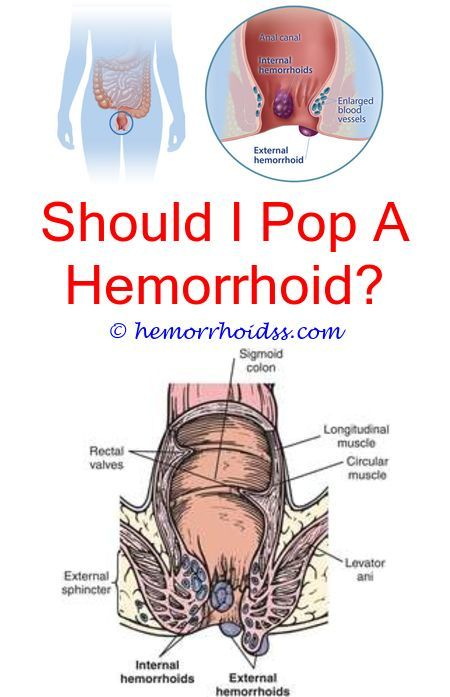 Butt plug for hemorrhoid