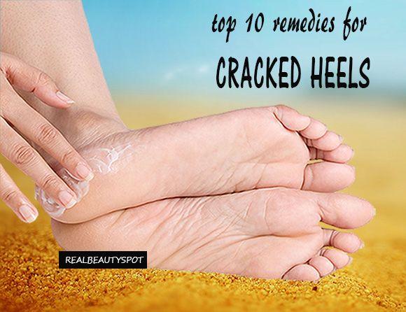 feet neglected body