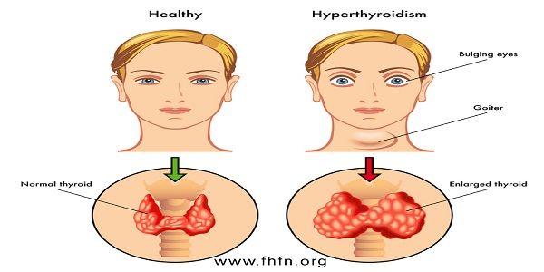 Often Tired & Depressed? Check for Hypothyroidism.   Family Health Freedom Network