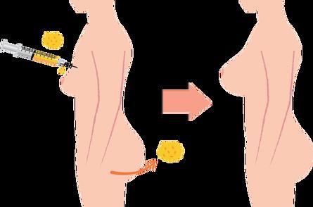 Fat transfer penis