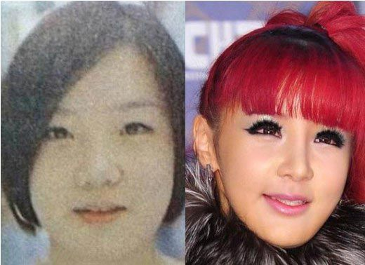 Park Bom Plastic Surgery Before And After Plastic Surgery Gone