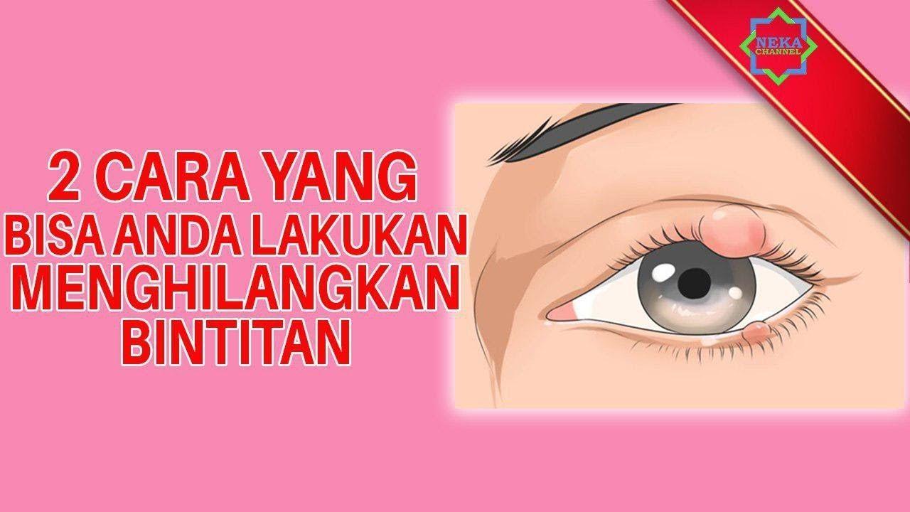 Cara Mengobati Mata