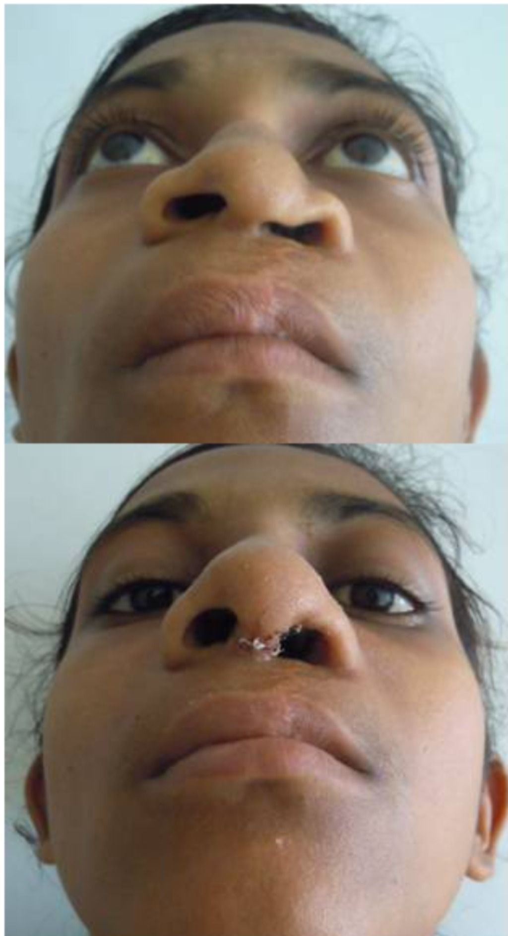 Pre And Post Op Rhinoplasty Surgery In 2020 Nose Plastic Surgery Rhinoplasty Surgery Rhinoplasty